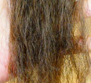 エイジング毛症状