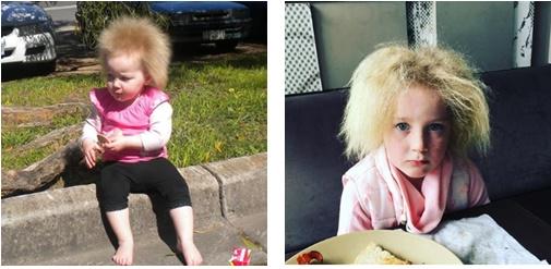 海外で強いくせ毛の女の子が一躍話題になった