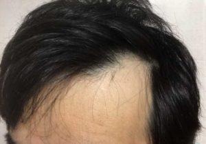 薄毛を隠すのはNG/ロコスアッソ美容室