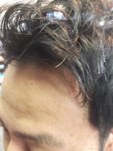 1年間、薄毛対策をした秘策のネタバレ