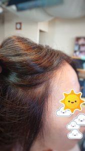 明るい白髪染めのリタッチの効果/after